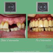 Misen_en_charge_imm%c3%a9diate_implants_et_dents_en_1_seule_intervention_002_gbi4hi