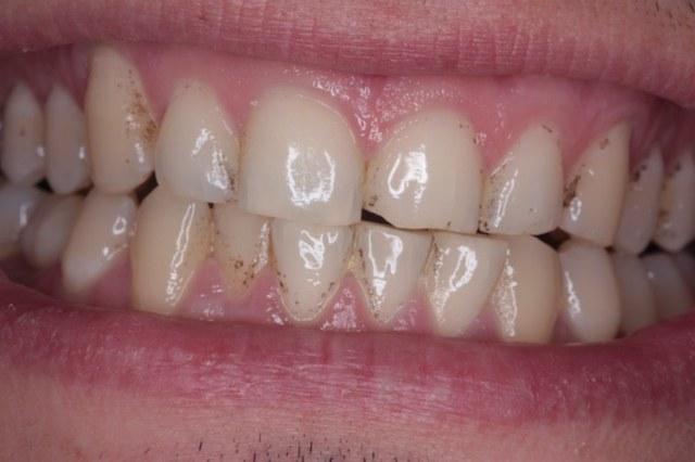 Taches Noires Dents