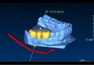 3D-Bilder und spezielle Computersoftware bieten viele Möglichkeiten für die Implantologie (c) Dr. Novakovic