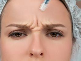 Zornfalte behandeln hyaluron botoxkkyuii