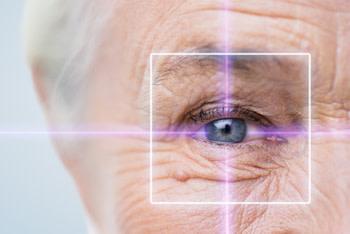 Im Alter lassen die Augen nach. Jetzt drohen auch altersbedingte Erkrankungen wie Grauer Star - (c) lev dolgachov Fotolia