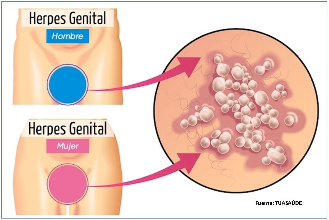 Herpes Virus.