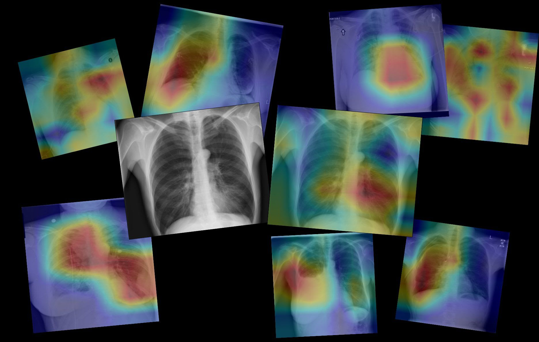 Coding a CNN for Medical Imaging using TensorFlow 2