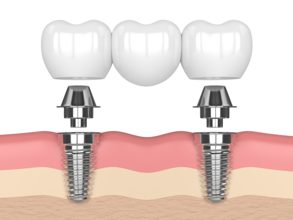 bridge dentaire sur implants
