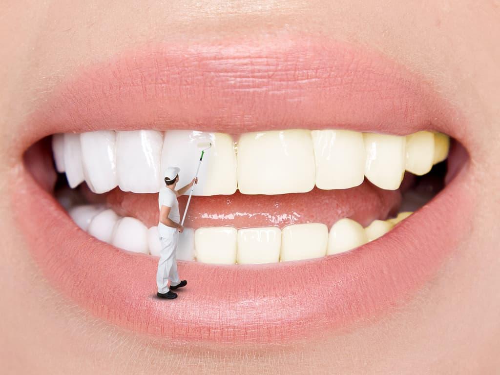 blanchiment dentaire realise par un peintre en batiments miniature