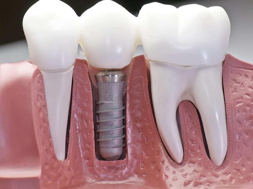 coupe_machoire_avec_implant_dentaire