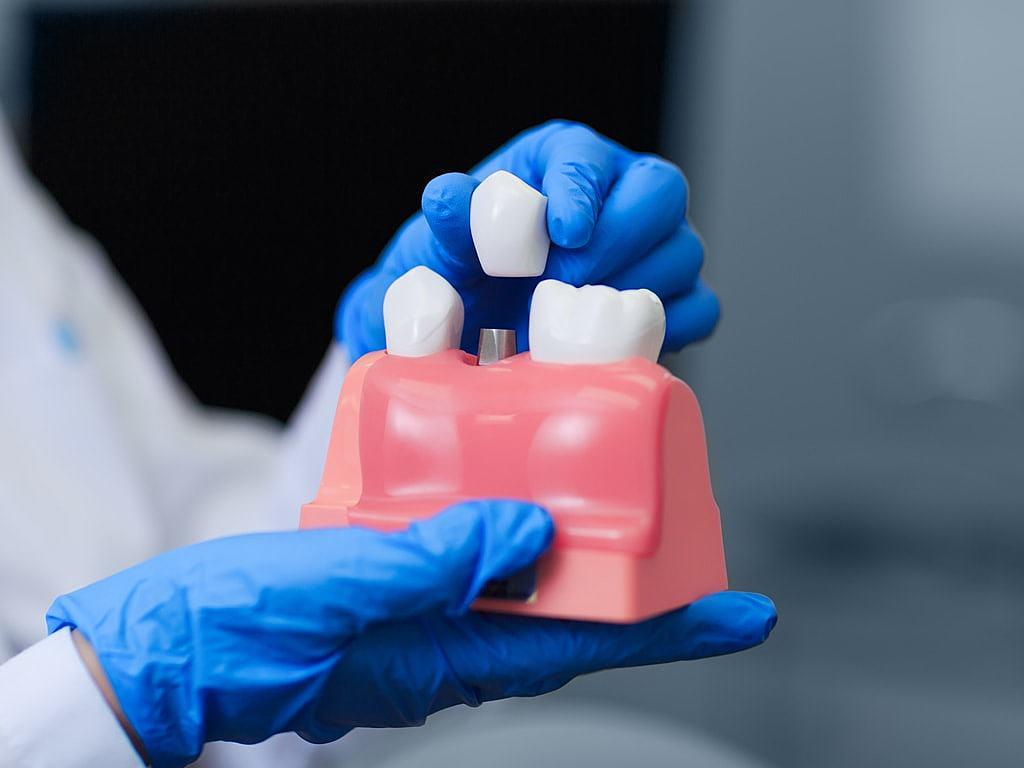 dentiste_expliquant_le_principe_d'une_couronne_sur_implant