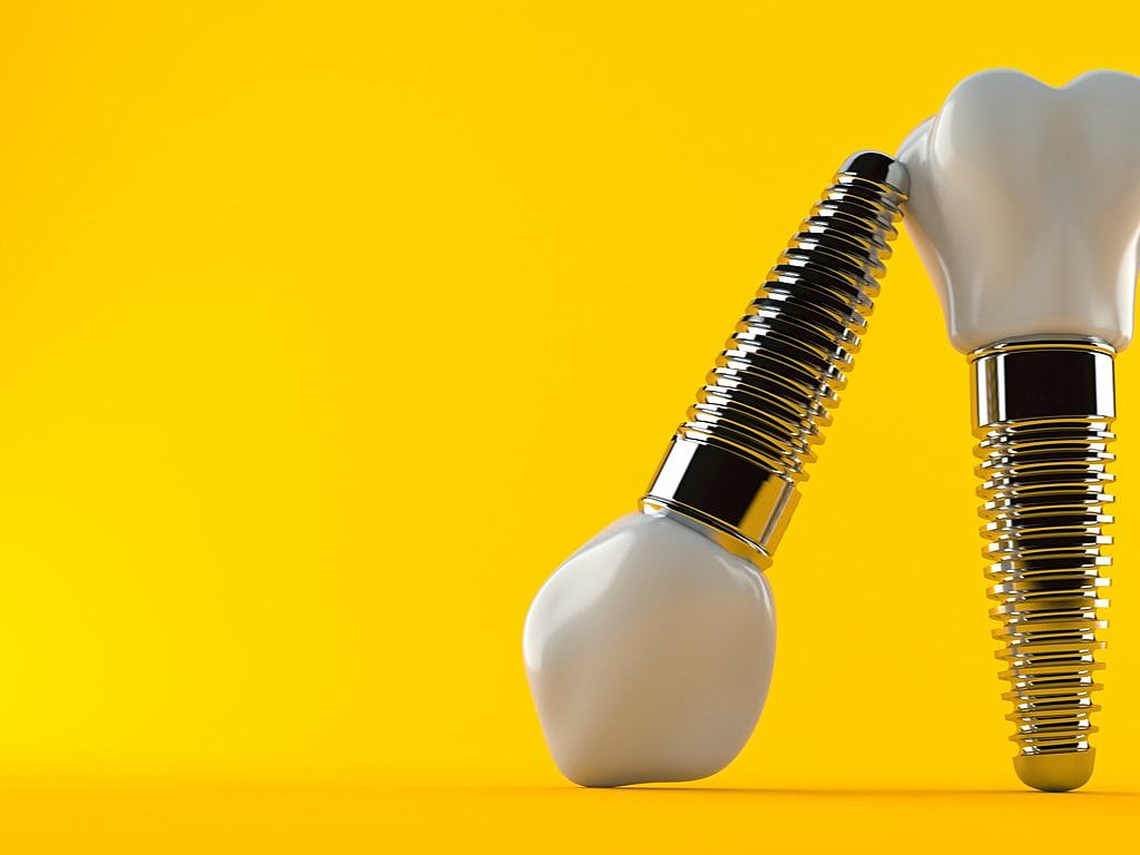 implants_dentaires_sur_fond_jaune