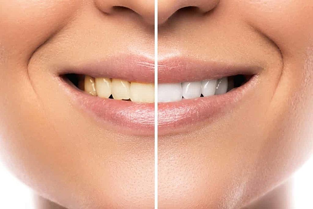le_blanchiment_dentaire