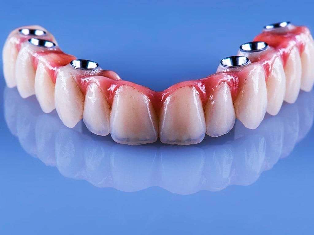 bridge_dentaire_complet_sur_implants