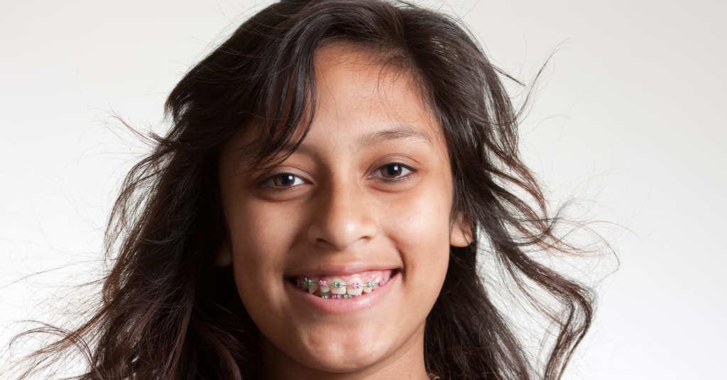 Jeune fille souriante avec bagues multicolors