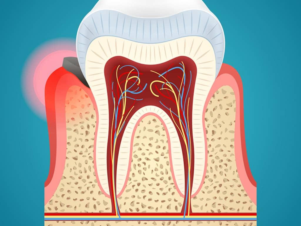 chirurgie parodontale