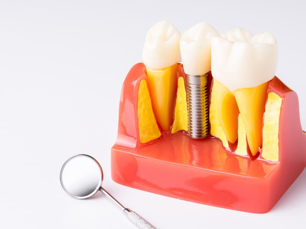 coupe d'une gencive avec implant dentaire
