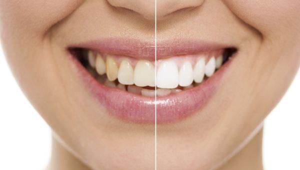 Whiten Your Teeth