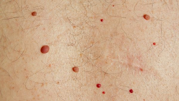 Basal cell carcinomas may be raised growths
