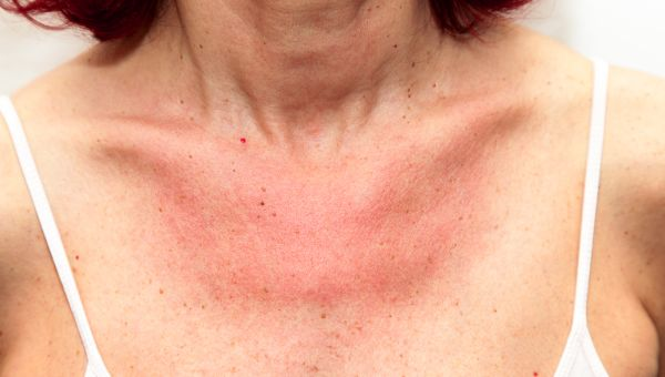 Basal cell carcinomas can be dry and patchy