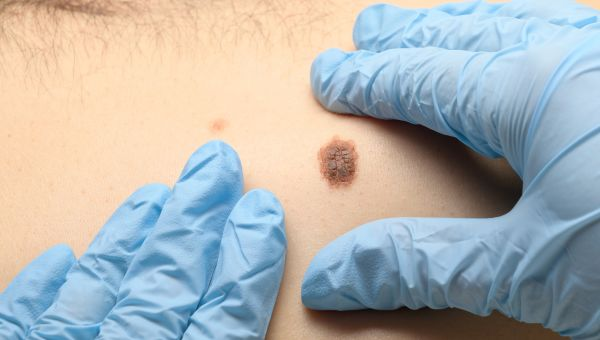 Squamous cell carcinomas may be raised and sore-like