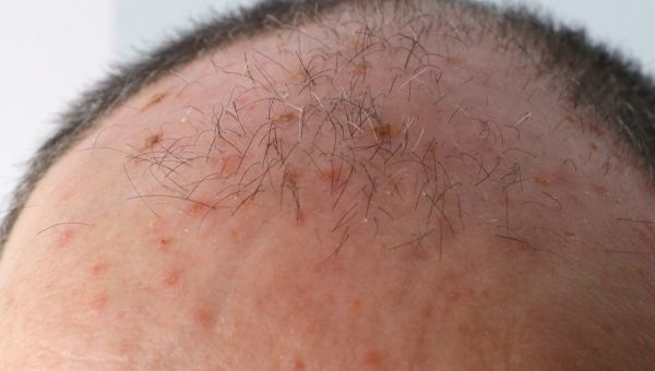 Actinic keratosis areas are dry and scaly
