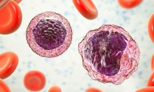 Terms to Help Understand Waldenstrom Macroglobulinemia