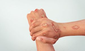 An Interactive Journey into Psoriasis