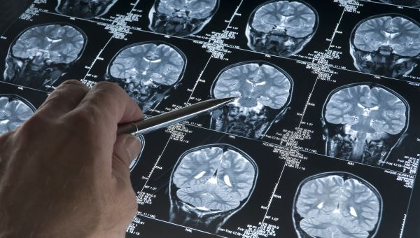 As Concussions Rise, Is MRI Enough?