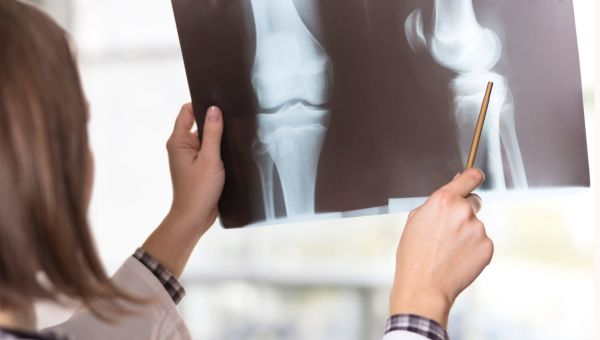 Rheumatoid Arthritis Tests and Exams