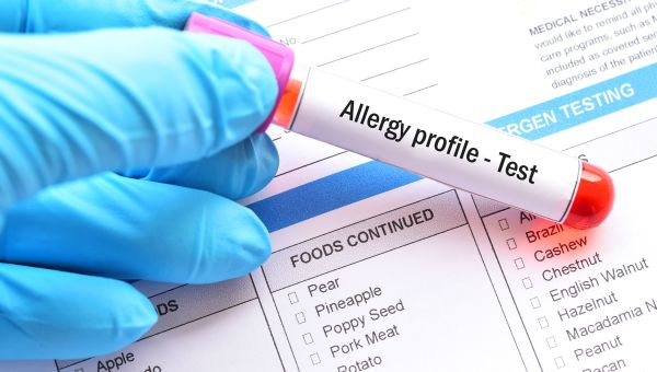 Are Your Food Allergies Real?