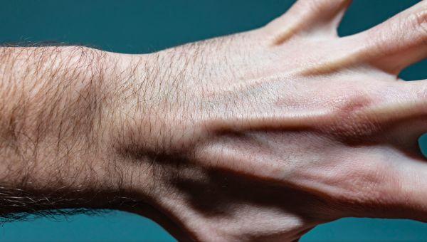 Common Types of Benign Hand Tumors