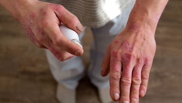 Is Psoriasis Mild, Moderate or Severe?