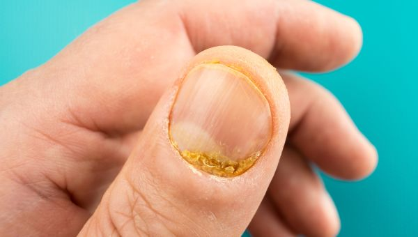 Can You Have More Than One Type of Psoriasis?