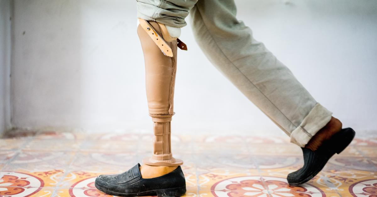 Lucky 8 Auto >> A new leg to stand on | Pursuit by The University of Melbourne
