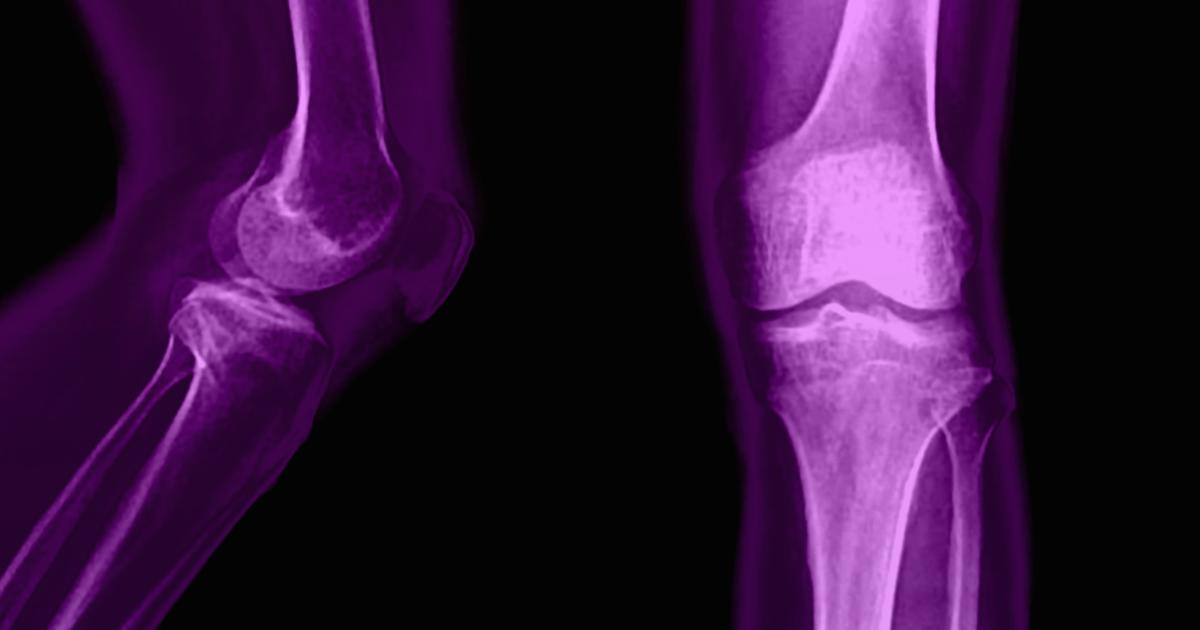 Online approach works in treating knee osteoarthritis